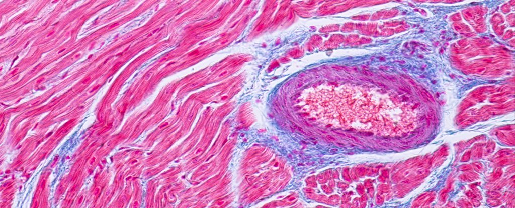 Evidence Indicates That Severe Forms of COVID-19 Can Damage The Heart